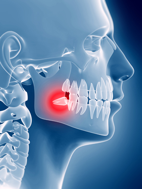 Removal Wisdom Teeth - Mr Aakshay Gulati in Wimbledon